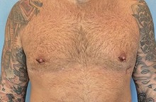 Male Breast Reduction After Photo by Anthony Admire, MD; Scottsdale, AZ - Case 30608