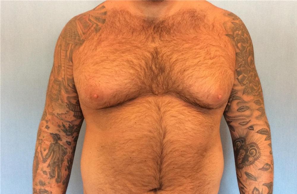 Scottsdale breast reduction