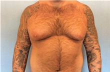 Male Breast Reduction Before Photo by Anthony Admire, MD; Scottsdale, AZ - Case 30608