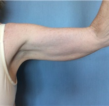 Arm Lift Before Photo by Anthony Admire, MD; Scottsdale, AZ - Case 30609