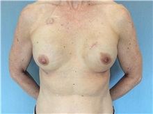 Breast Reconstruction After Photo by Anthony Admire, MD; Scottsdale, AZ - Case 30620