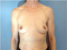 Breast Reconstruction Before Photo by Anthony Admire, MD; Scottsdale, AZ - Case 30620