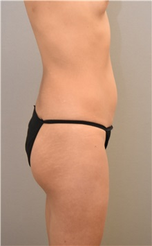 Buttock Lift with Augmentation Before Photo by Keshav Magge, MD; Bethesda, MD - Case 31641