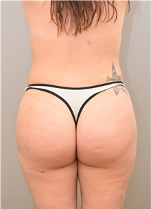 Buttock Lift with Augmentation After Photo by Keshav Magge, MD; Bethesda, MD - Case 31642