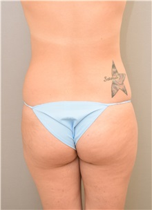 Buttock Lift with Augmentation Before Photo by Keshav Magge, MD; Bethesda, MD - Case 31642