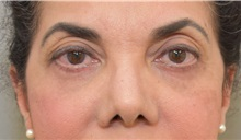 Eyelid Surgery After Photo by Keshav Magge, MD; Bethesda, MD - Case 31651