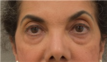 Eyelid Surgery Before Photo by Keshav Magge, MD; Bethesda, MD - Case 31651