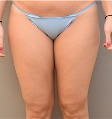 Liposuction Before Photo by Keshav Magge, MD; Bethesda, MD - Case 31655