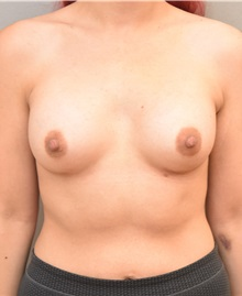 Breast Augmentation After Photo by Keshav Magge, MD; Bethesda, MD - Case 31687