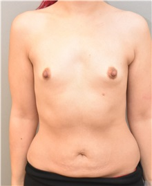 Breast Augmentation Before Photo by Keshav Magge, MD; Bethesda, MD - Case 31687