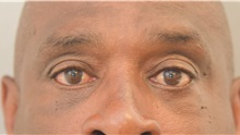Eyelid Surgery After Photo by Keshav Magge, MD; Bethesda, MD - Case 31692