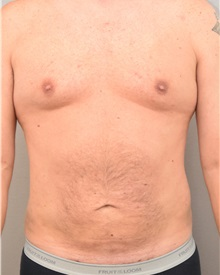 Liposuction After Photo by Keshav Magge, MD; Bethesda, MD - Case 31693