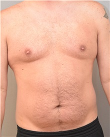 Liposuction Before Photo by Keshav Magge, MD; Bethesda, MD - Case 31693