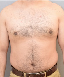 Male Breast Reduction After Photo by Keshav Magge, MD; Bethesda, MD - Case 31814