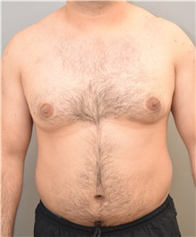 Male Breast Reduction Before Photo by Keshav Magge, MD; Bethesda, MD - Case 31814