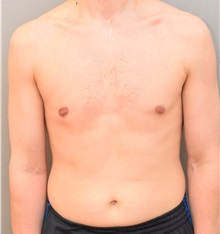 Male Breast Reduction After Photo by Keshav Magge, MD; Bethesda, MD - Case 31815