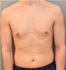 Male Breast Reduction Before Photo by Keshav Magge, MD; Bethesda, MD - Case 31815