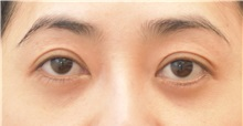 Eyelid Surgery After Photo by Keshav Magge, MD; Bethesda, MD - Case 31818