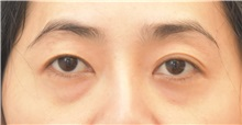Eyelid Surgery Before Photo by Keshav Magge, MD; Bethesda, MD - Case 31818
