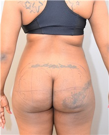 Buttock Lift with Augmentation Before Photo by Keshav Magge, MD; Bethesda, MD - Case 31819