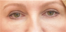 Eyelid Surgery After Photo by Keshav Magge, MD; Bethesda, MD - Case 31988