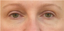 Eyelid Surgery Before Photo by Keshav Magge, MD; Bethesda, MD - Case 31988