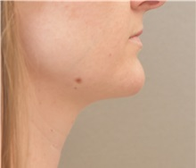 Liposuction After Photo by Keshav Magge, MD; Bethesda, MD - Case 32092