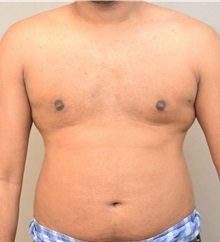 Male Breast Reduction After Photo by Keshav Magge, MD; Bethesda, MD - Case 32109