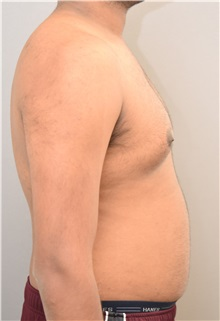 Male Breast Reduction Before Photo by Keshav Magge, MD; Bethesda, MD - Case 32109