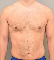 Male Breast Reduction After Photo by Keshav Magge, MD; Bethesda, MD - Case 32232