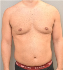 Male Breast Reduction Before Photo by Keshav Magge, MD; Bethesda, MD - Case 32232