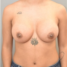 Breast Augmentation After Photo by Keshav Magge, MD; Bethesda, MD - Case 32526