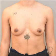 Breast Augmentation Before Photo by Keshav Magge, MD; Bethesda, MD - Case 32526