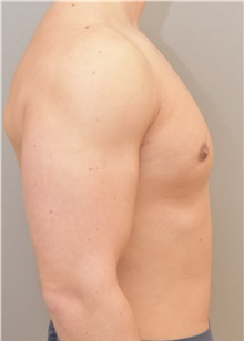 Male Breast Reduction After Photo by Keshav Magge, MD; Bethesda, MD - Case 32863