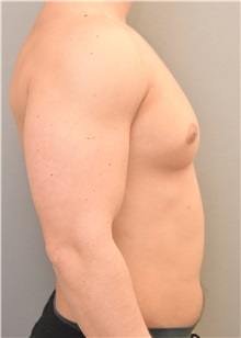 Male Breast Reduction Before Photo by Keshav Magge, MD; Bethesda, MD - Case 32863