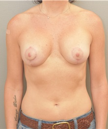 Breast Lift After Photo by Keshav Magge, MD; Bethesda, MD - Case 33488