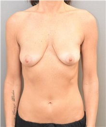 Breast Lift Before Photo by Keshav Magge, MD; Bethesda, MD - Case 33488