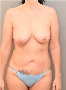 Tummy Tuck Before Photo by Keshav Magge, MD; Bethesda, MD - Case 37011