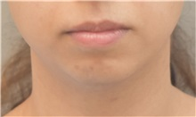 Chin Augmentation Before Photo by Keshav Magge, MD; Bethesda, MD - Case 37012