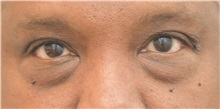 Eyelid Surgery Before Photo by Keshav Magge, MD; Bethesda, MD - Case 37013