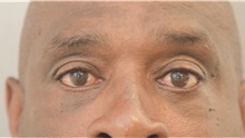 Eyelid Surgery After Photo by Keshav Magge, MD; Bethesda, MD - Case 37014