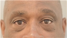 Eyelid Surgery Before Photo by Keshav Magge, MD; Bethesda, MD - Case 37014