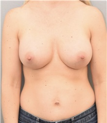 Breast Augmentation After Photo by Keshav Magge, MD; Bethesda, MD - Case 37016