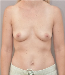 Breast Augmentation Before Photo by Keshav Magge, MD; Bethesda, MD - Case 37016