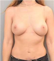 Breast Augmentation After Photo by Keshav Magge, MD; Bethesda, MD - Case 37081