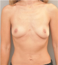Breast Augmentation Before Photo by Keshav Magge, MD; Bethesda, MD - Case 37081