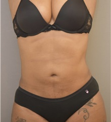 Liposuction After Photo by Keshav Magge, MD; Bethesda, MD - Case 37191