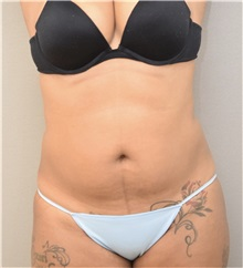 Liposuction Before Photo by Keshav Magge, MD; Bethesda, MD - Case 37191