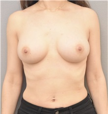 Breast Augmentation After Photo by Keshav Magge, MD; Bethesda, MD - Case 37217