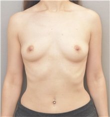Breast Augmentation Before Photo by Keshav Magge, MD; Bethesda, MD - Case 37217